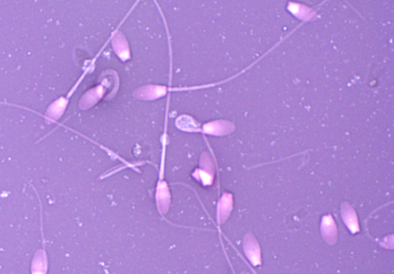 Sperm Accumulators_Sperm Photo cropped