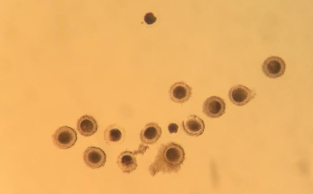 Ovum Pickup_Oocytes
